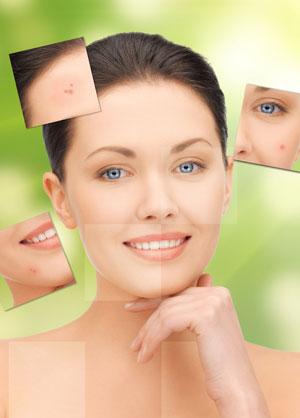 acne female face